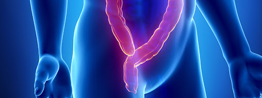 Are you at a higher risk for colorectal cancer