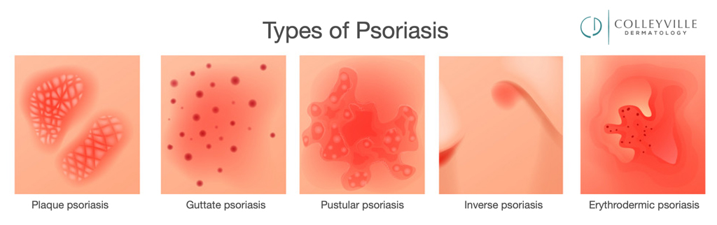 If you have Psoriasis you need to know your Diet